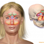 """Sinusitis image womans face """"Blausen 0800 Sinusitis"""" by BruceBlaus - Own work. Licensed under Creative Commons Attribution 3.0 via Wikimedia Commons"""